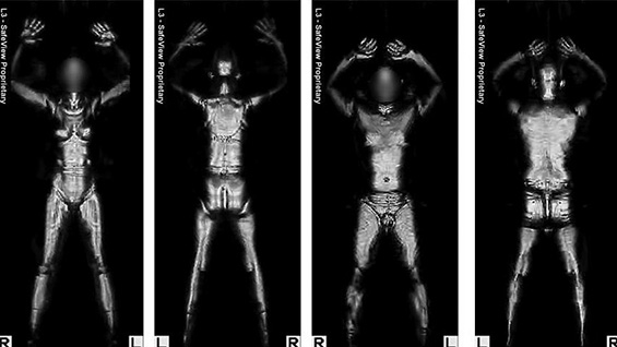Image from an active millimeter wave body scanner. Credit: public domain via Wikipedia